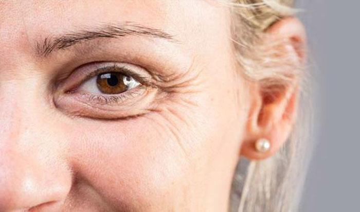 Are Eye Creams Really Necessary?